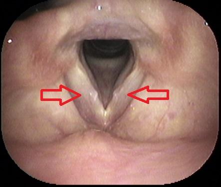 た 取り につい 鼓膜 方 耳垢