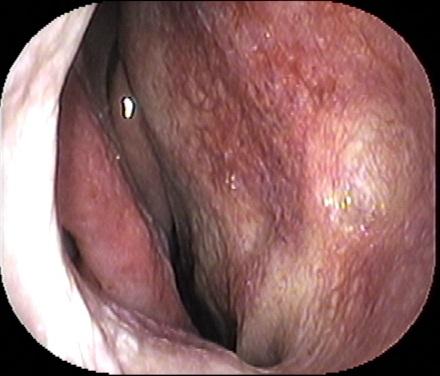 塊 鼻血 血 レバー の 「大人の鼻血」は病気の兆候?知っておきたい原因とシグナル