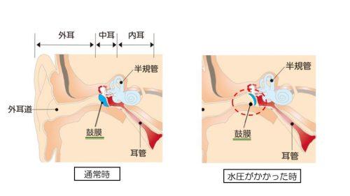 潜水性中耳炎