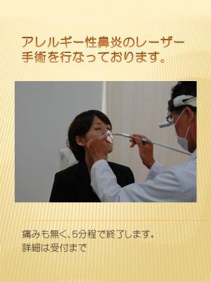 アレルギー性鼻炎のレーザー手術を行なっております
