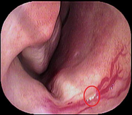 小児鼻出血1