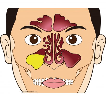 ロゴ入り図解副鼻腔の構造別パターン
