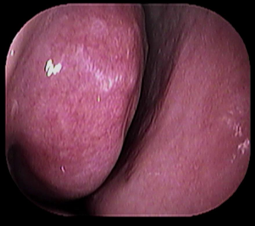 薬剤性鼻炎