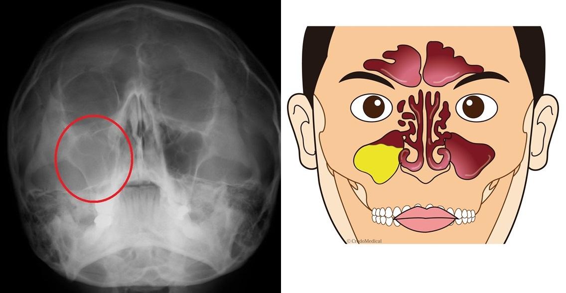 副鼻腔炎12
